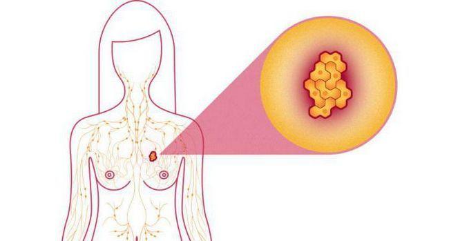 Фото - 3 ступінь раку молочної залози: тривалість життя. Терапія раку молочної залози
