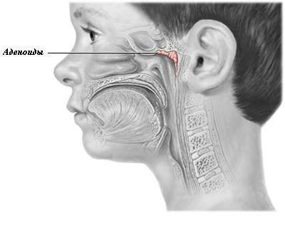 аденоїди у дорослих симптоми і лікування