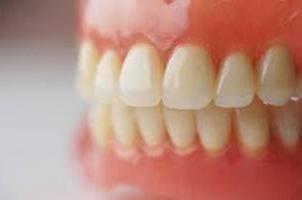 Фото - Акрилові протези зубні: переваги та недоліки, відгуки