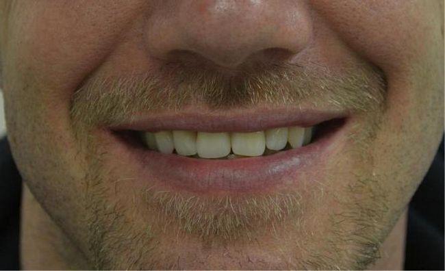 акрилові протези зубні