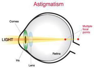 Фото - Астігматіческіе контактні лінзи: особливості, різновиди та технологія використання