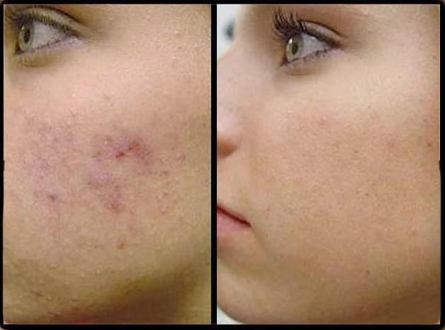 базірон ас для чутливої   шкіри