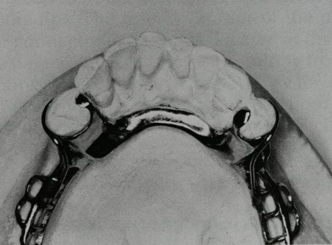 Фото - Бюгельний протез шінірующій: опис, особливості, відгуки