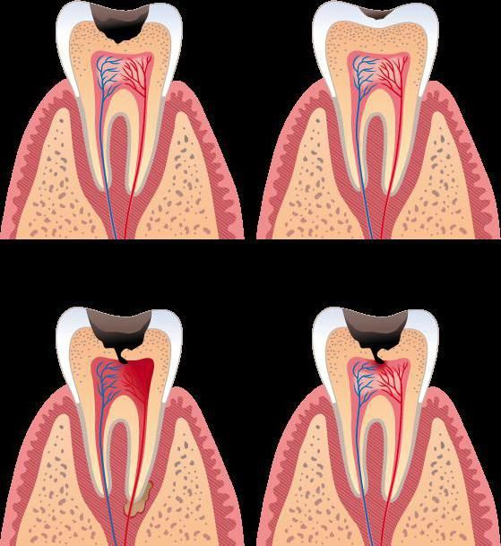 зубна паста charcle відгуки