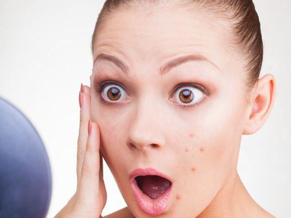 Фото - Що робити, якщо на обличчі фурункул? Як лікувати правильно? Медикаменти та рекомендації лікарів