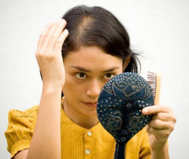 Випадає волосся до якого лікаря звернутися