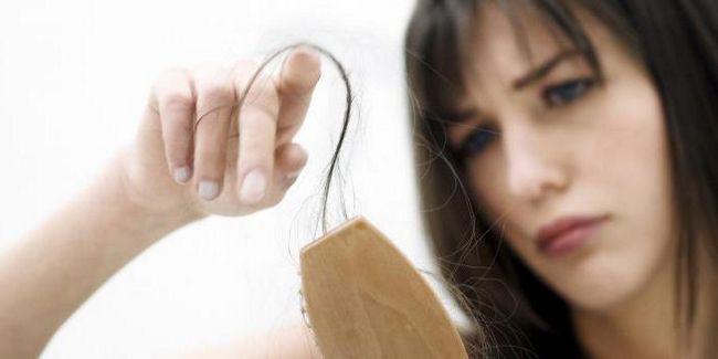 Стали випадати волосся до якого лікаря звернутися