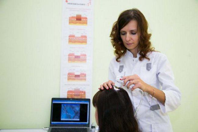 До якого лікаря звернутися якщо випадає волосся на голові у жінок