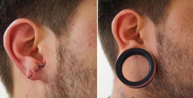 тунелі або тунелі у вухах