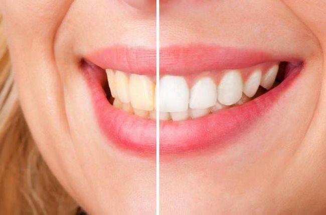 Як зняти чутливість зубів після відбілювання