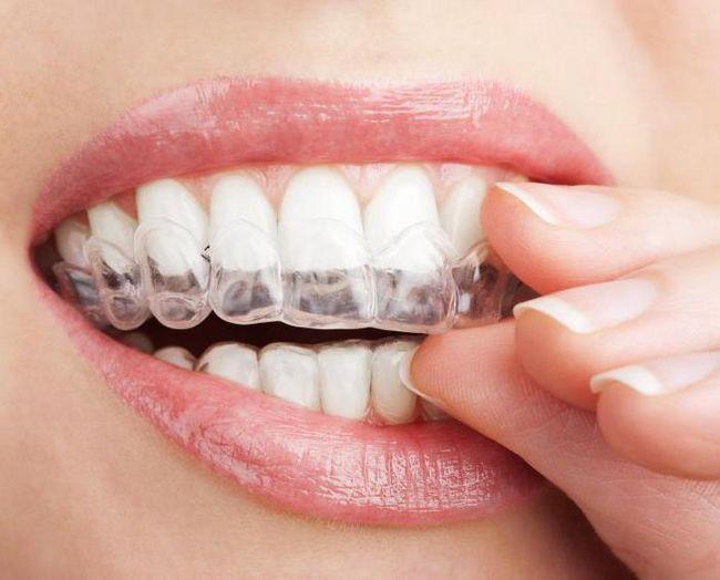 Як зняти чутливість зубів в домашніх умовах