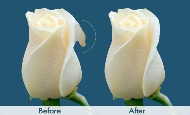 Фото - Лабіопластика: до і після. Відгуки, ціни