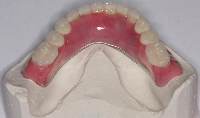 Фото - Нейлоновий протез при повній відсутності зубів і частковому. Відгуки про нейлонових протезах