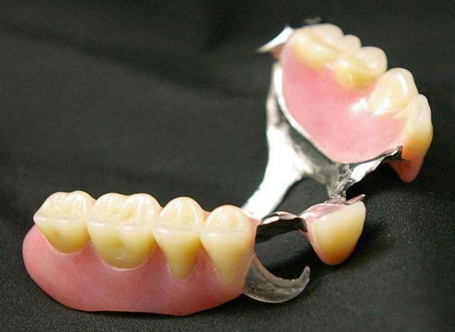 нейлоновий протез при повній відсутності зубів фото