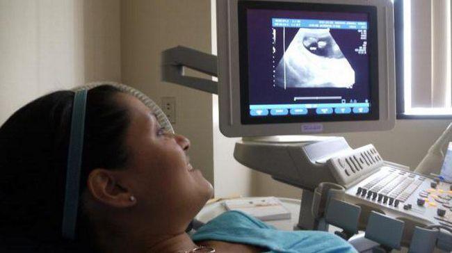 Фото - Норми індексу амніотичної рідини по тижнях. Причини, діагностика та лікування маловоддя у вагітних