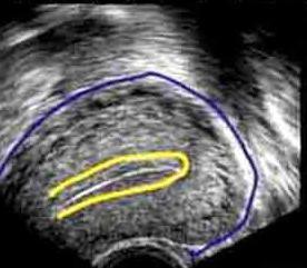 розміри матки по узі норма м відлуння