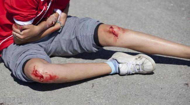 Фото - Відкрита рвана рана на нозі і руці не заживає. Лікування рани. Що таке рана?
