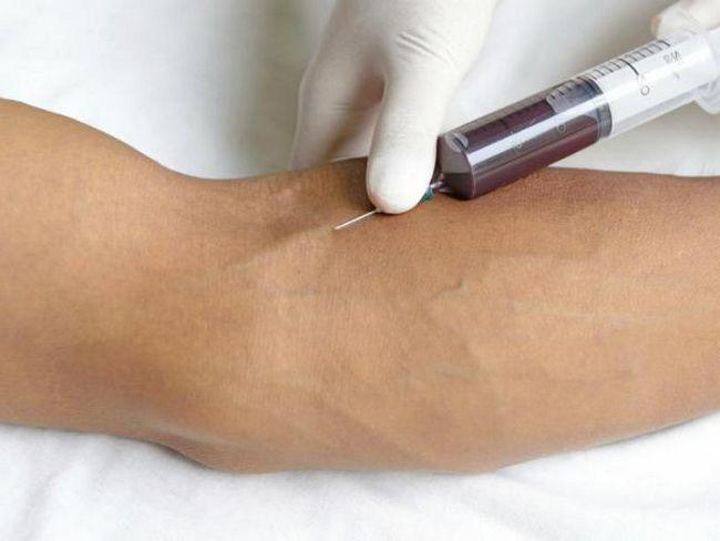 РСТ аналіз крові розшифровка
