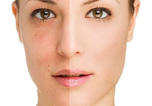 пілінг обличчя в домашніх умовах для проблемної шкіри