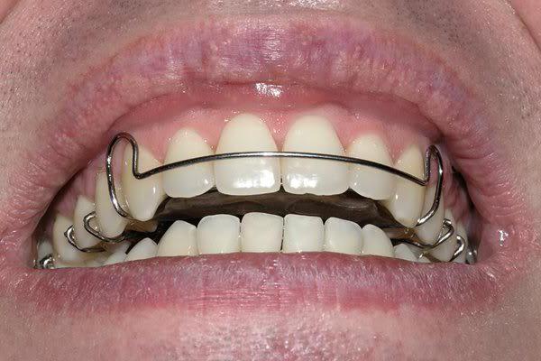 пластини для вирівнювання зубів у дітей