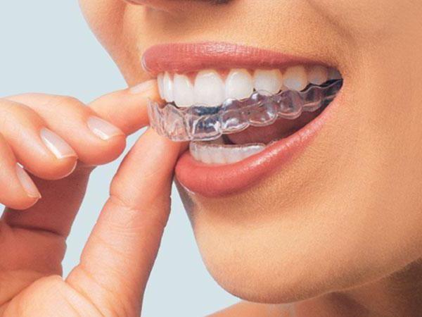 як виглядають пластини для вирівнювання зубів