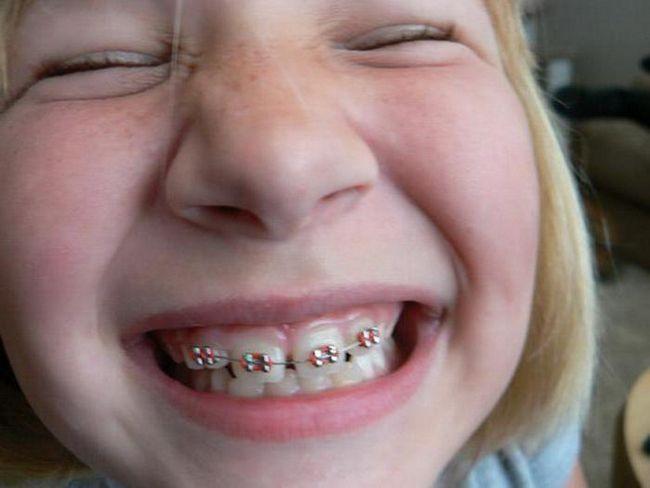 пластини для вирівнювання зубів у дітей фото
