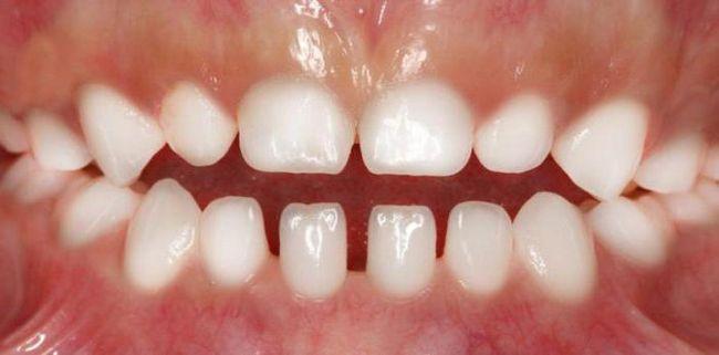 виправлення прикусу молочних зубів