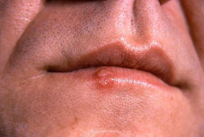 які таблетки пити при герпесі на губах