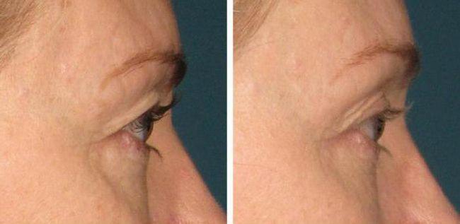 рф ліфтинг обличчя відгуки лікарів косметологів