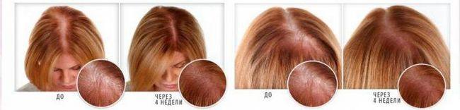 масло для волосся ultra hair system відгуки