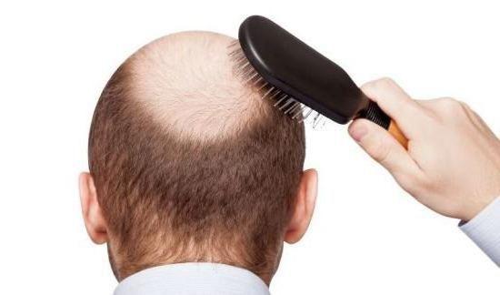 Регейн для волосся відгуки ціна