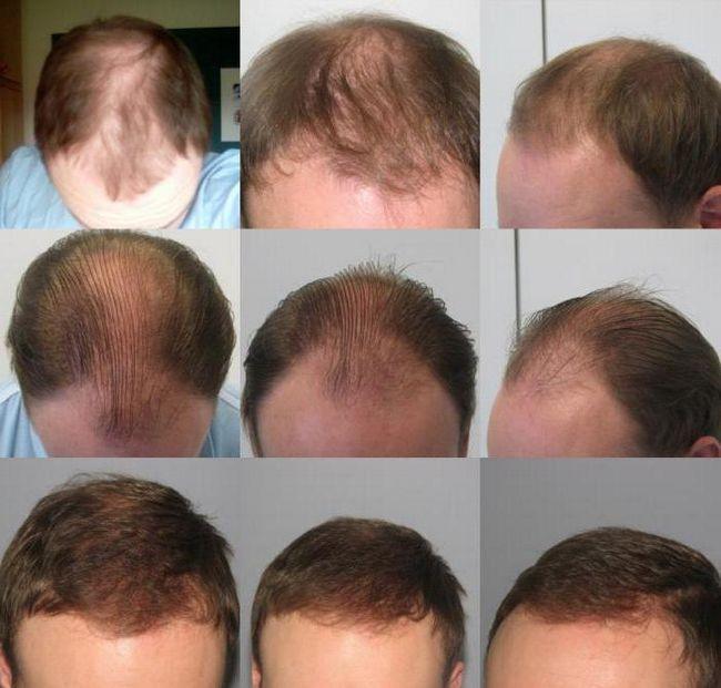 засіб проти випадіння волосся pharmacia Регейн