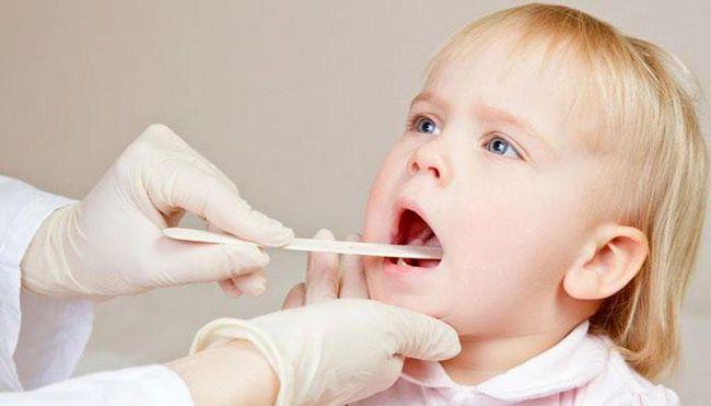 хронічний тонзиліт симптоми і лікування у дітей