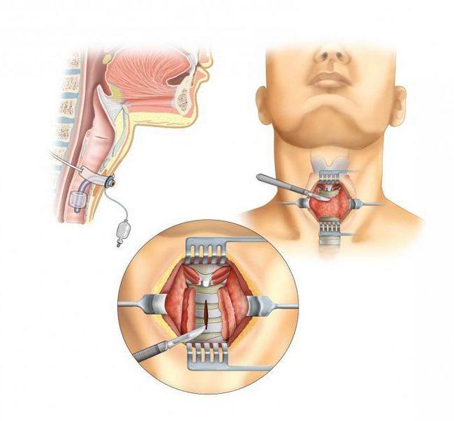 Трубка в горлі після операції