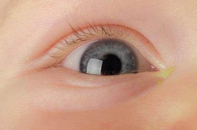 у дитини закисають очі що робити