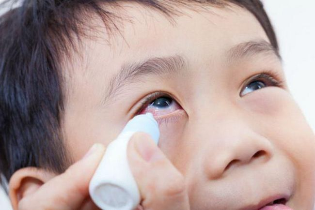 закисають очі у дитини лікування