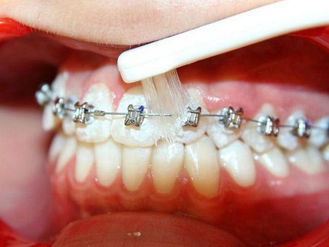 ортодонтична зубна щітка для брекетів